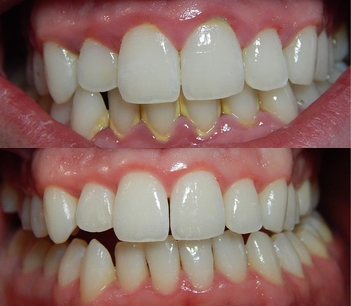 Read Before You Go For At Home Teeth Bleaching Dr Arora Health