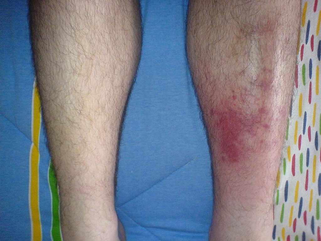 What Is MRSA ( Staph Infection) - The New Super-Bug by Dr Arora And Team