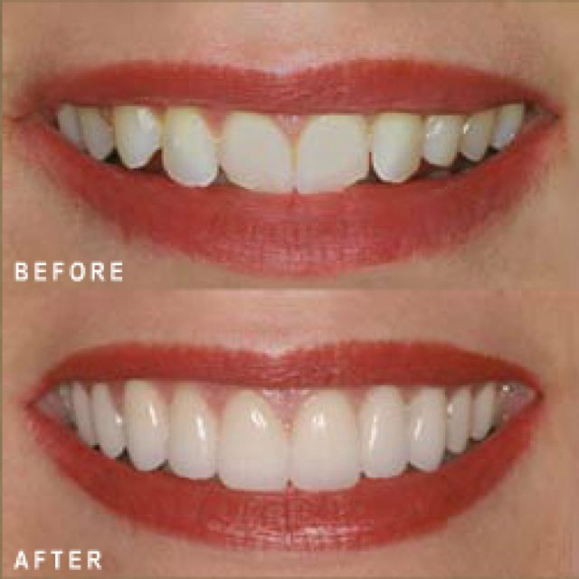 These are some porcelain veneers pros and cons by Dr Arora and Team