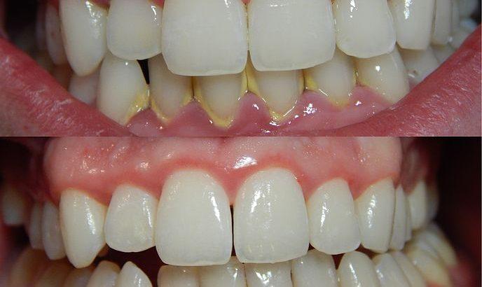 teeth bleaching by Dr Arora and Team